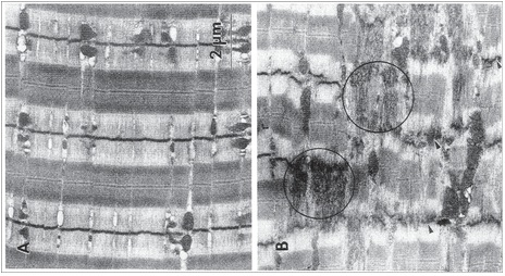 daño muscular hipertrofia