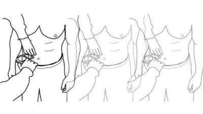 Calipers pliegue umbilical