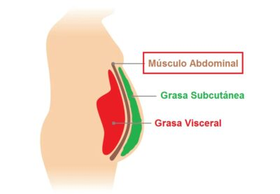 Musculo abdominal grasa